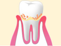 軽度歯周病のイメージ