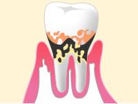 中等度歯周病のイメージ