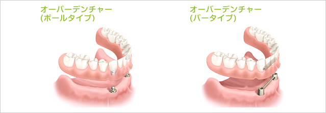 オーバーデンチャーによるインプラント治療のイメージ